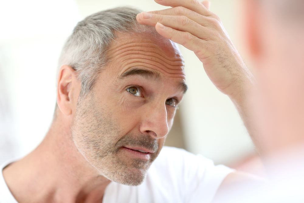 Study Finds Relationship Between Male Pattern Baldness and Risk of Aggressive Prostate Cancer