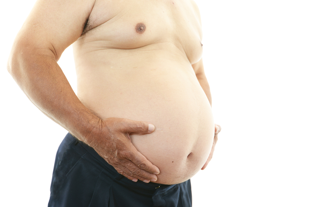Obesity May Increase Risk of Progression For patients With Low-Risk Prostate Cancer