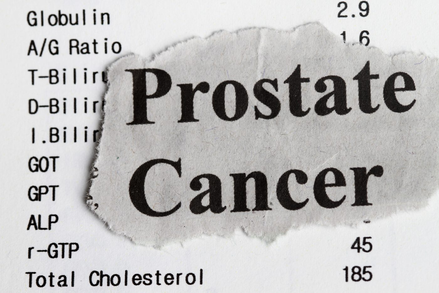 Prostate Cancer Screening Guidelines Can Confuse Clinicians