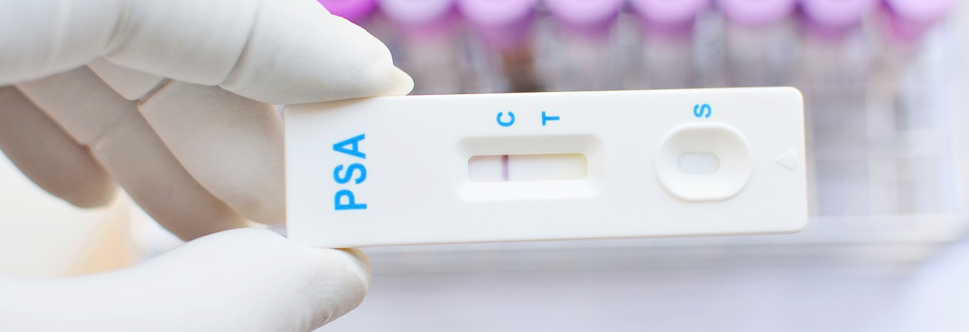 In High-Grade Prostate Cancer, Low PSA Levels May Raise Mortality Risk