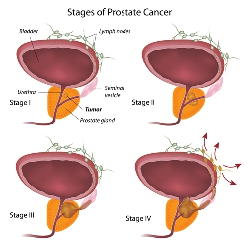 Proton Radiation Therapy for the Treatment of Patients With High Risk Prostate Cancer