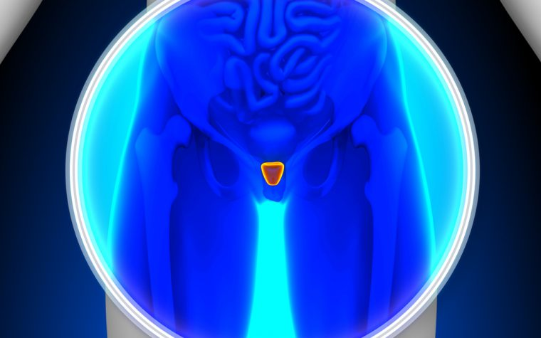 Prostate cancer detection