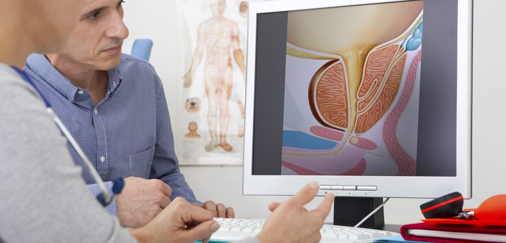 New Prognosis Method for Prostate Cancer Patients Provides More Accurate Results, Study Finds