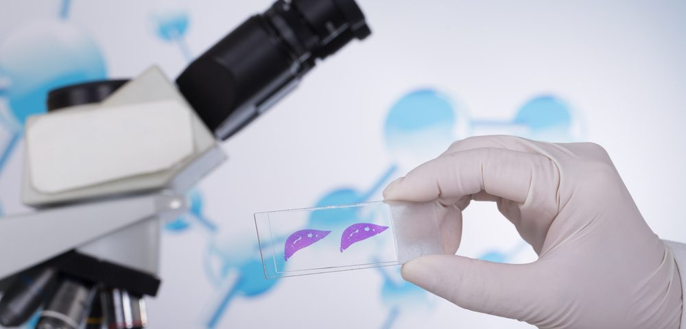 Google Develops Augmented Reality Microscope to Better Detect Cancer