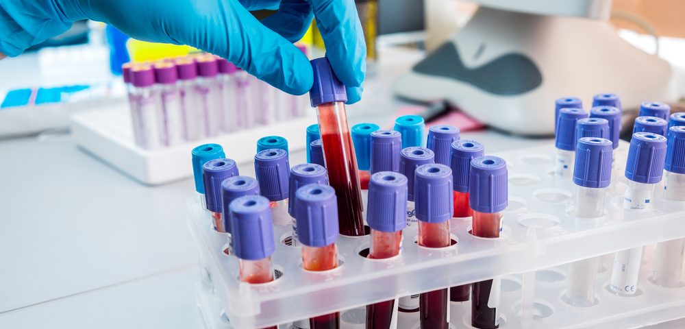 Tumor Cells in Blood of Prostate Cancer Patients May Predict Likelihood of Metastasis