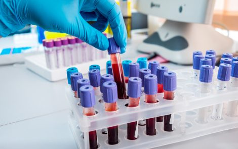 New Way to Preserve Tumor Biomarkers in Blood Could Lead to Better Treatment Decisions
