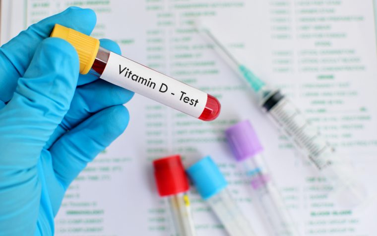 vitamin D blood levels