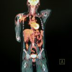 PET imaging agent