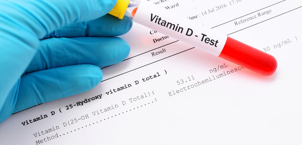 Chinese Study Links High Vitamin D Levels to Greater Risk of Prostate Cancer