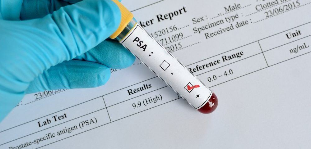 PSA Testing Cuts Deaths, Shows Value of Long-Term Screening